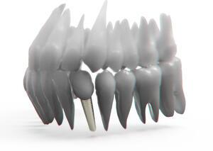 Czym zajmuje się protetyka stomatologiczna? | kielkismaku.pl